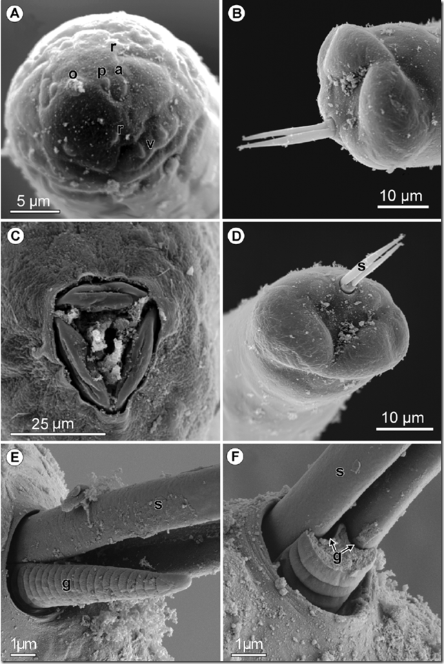 Philometra-saltatrix-Ramachandran-1973-scanning-electron-micrographs-A-cephalic-end